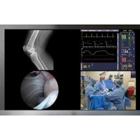 Operating Room Audio Video and Control Integration Sales